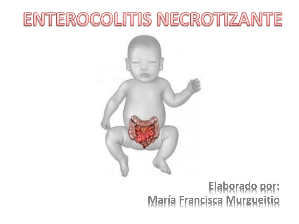 enterocolitis necrotizante l.