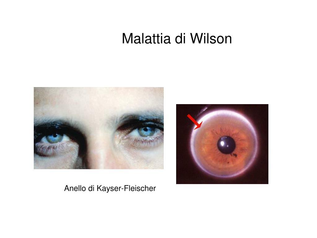 Anello di Kayser-Fleischer