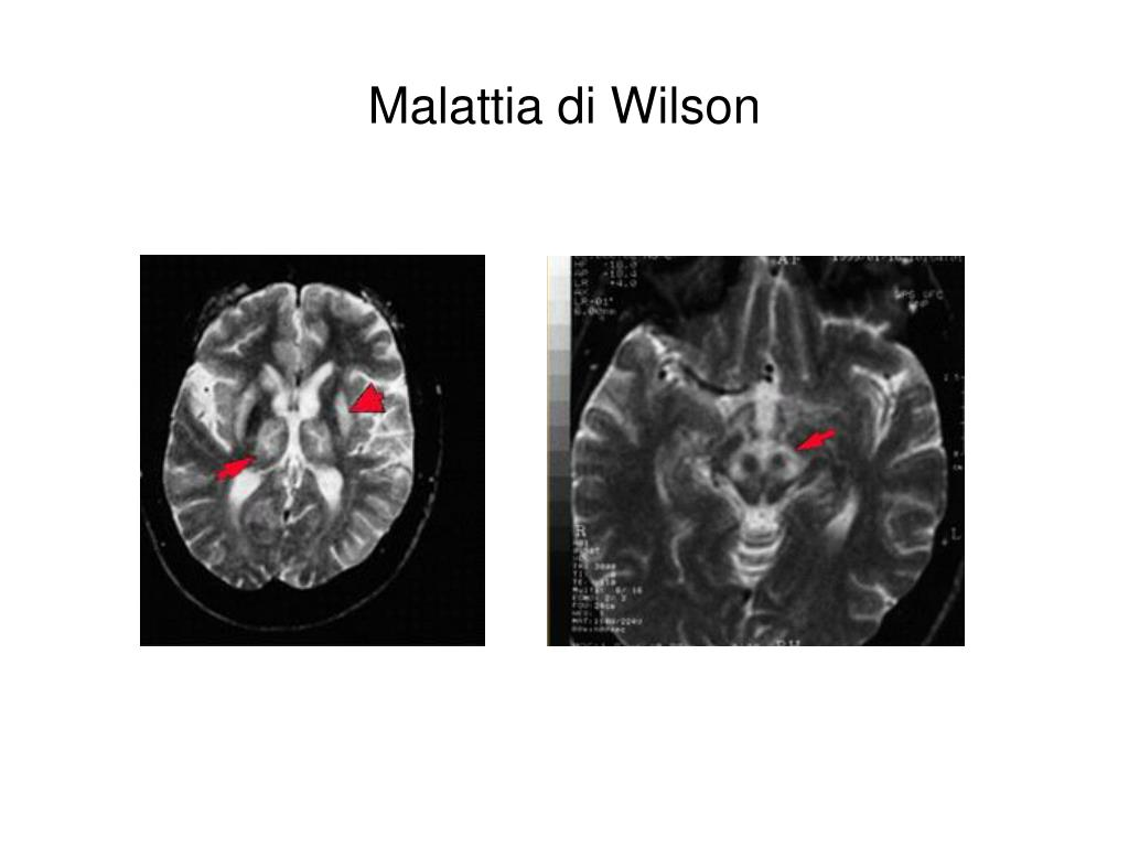 Malattia di Wilson
