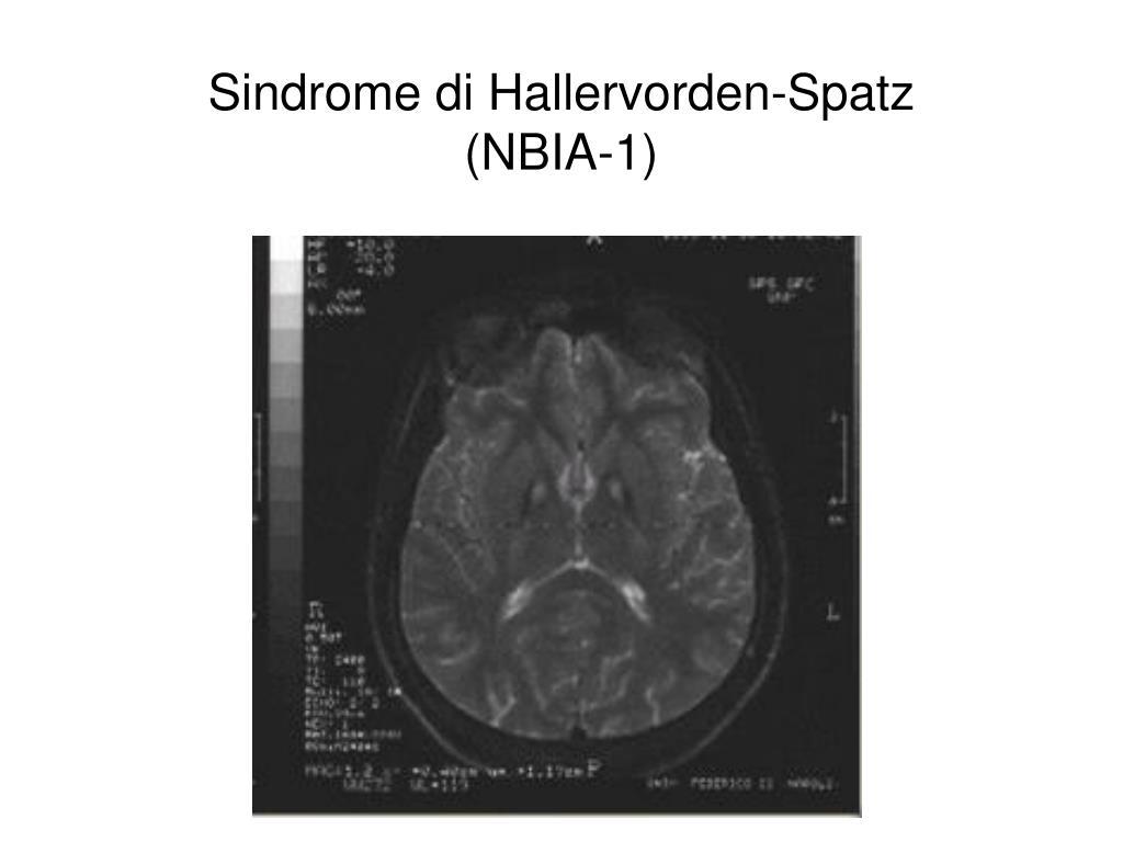Sindrome di Hallervorden-Spatz