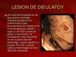 lesion de dieulafoy