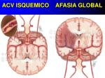 acv isquemico afasia global
