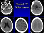 normal ct older person