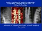 descompresi n posterior y osteos ntesis por medio de 2 placas roy camille