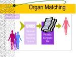 organ matching