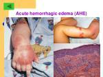 acute hemorrhagic edema ahe34