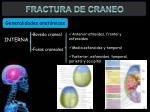 fractura de craneo4