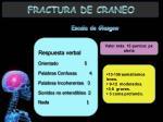 fractura de craneo9
