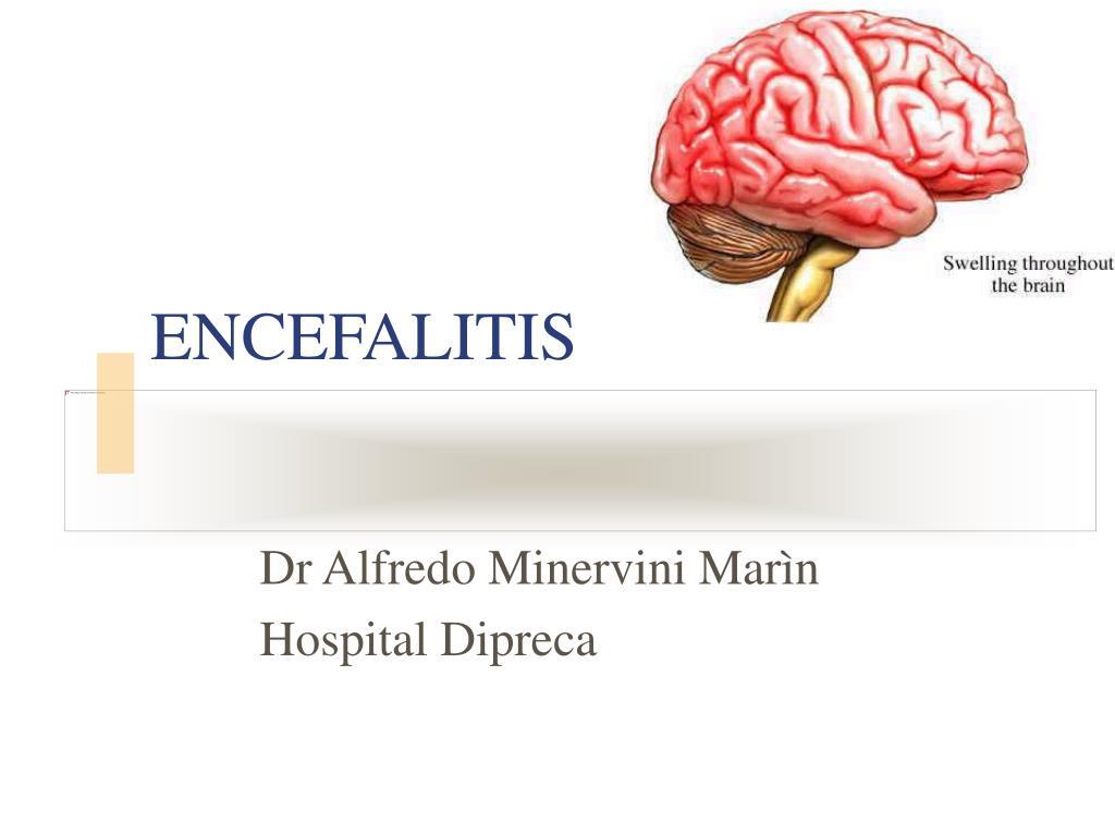encefalitis l.