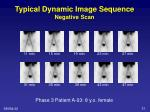 typical dynamic image sequence negative scan