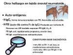 otros hallazgos en tejido sinovial reumatoide