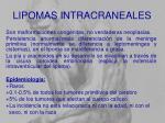 lipomas intracraneales
