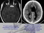 t1 axial muestra una lesi n redondeada a nivel frontal izdo con un nivel en su interior