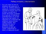reflejo tricipital y olecraneano