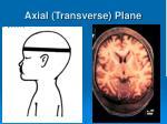 axial transverse plane