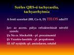 sz les qrs tachycardia tachyarrhytmia