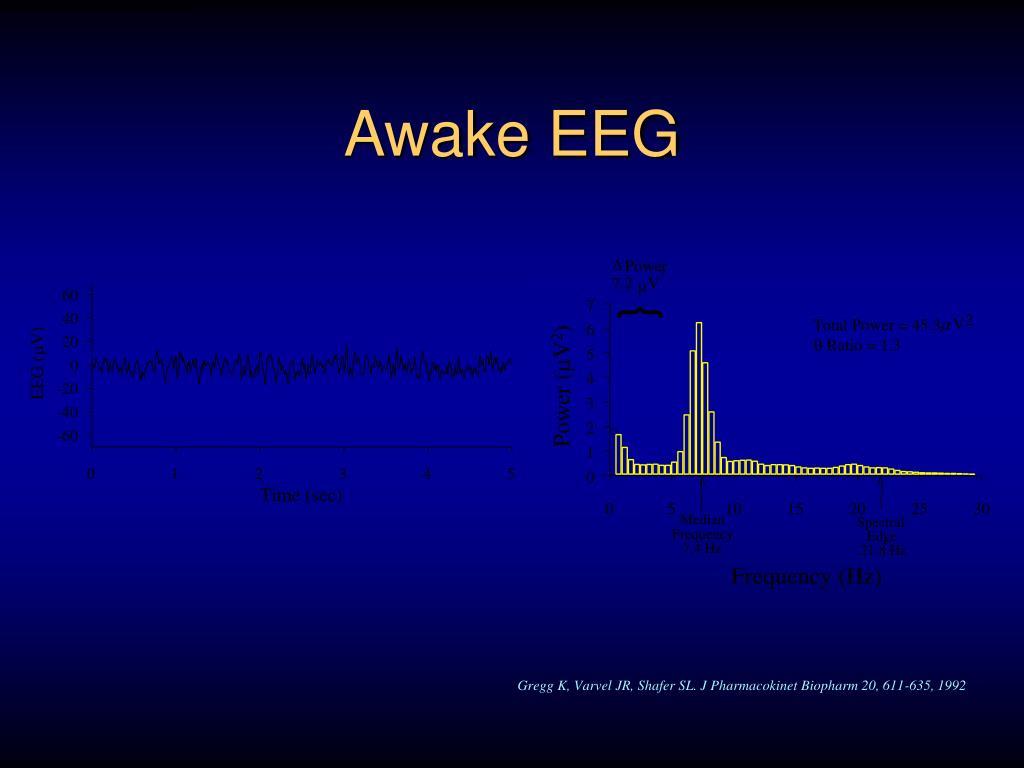 Awake EEG