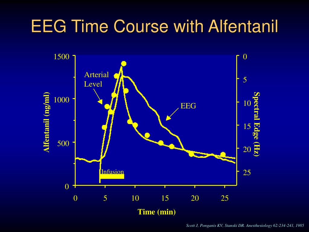 EEG Time Course with Alfentanil