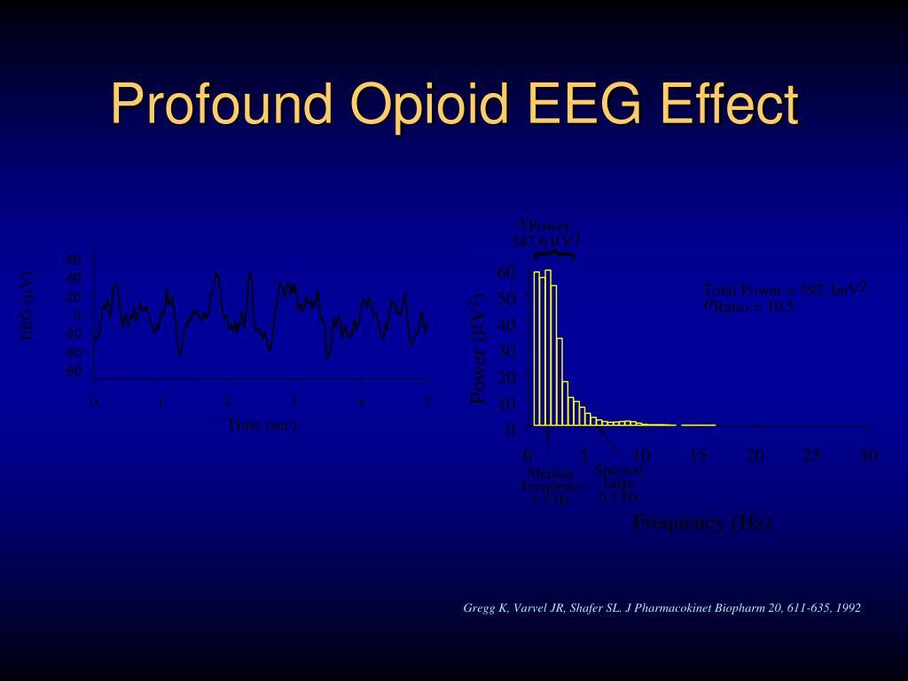 Profound Opioid EEG Effect