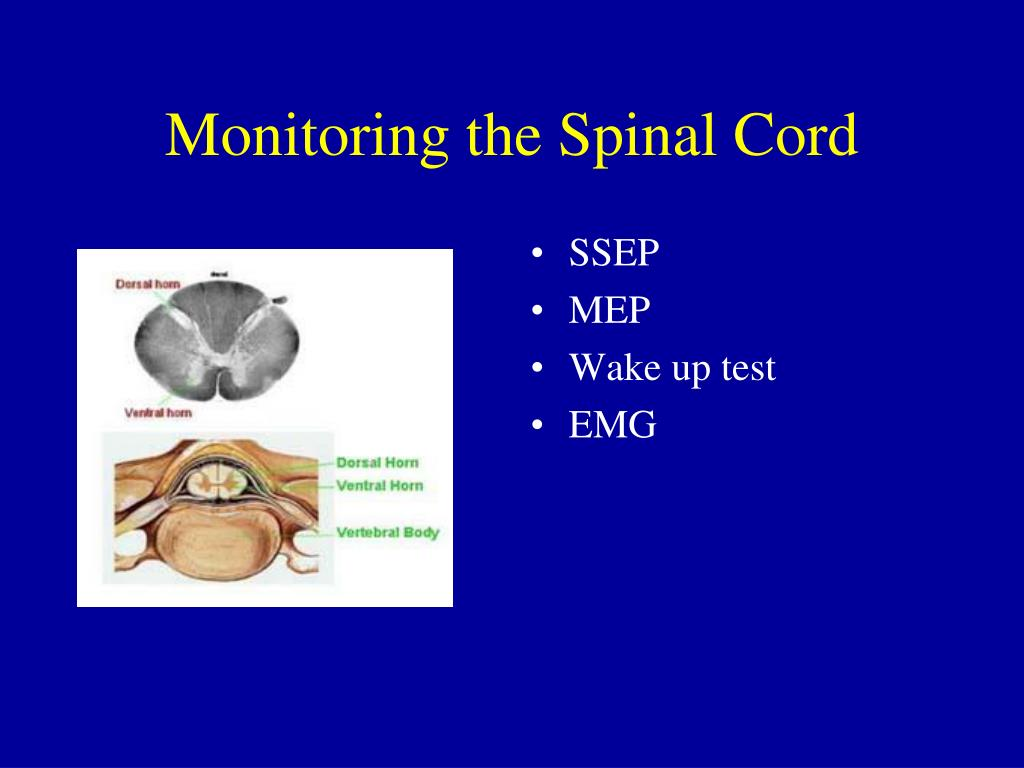 Monitoring the Spinal Cord