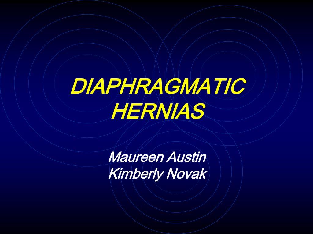 diaphragmatic hernias maureen austin kimberly novak l.