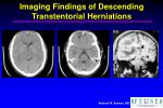 imaging findings of descending transtentorial herniations