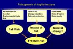 pathogenesis of fragility fractures