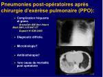 pneumonies post op ratoires apr s chirurgie d ex r se pulmonaire ppo