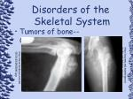 disorders of the skeletal system96