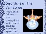 disorders of the vertebrae102