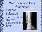 most common bone fractures