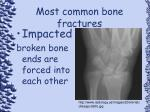 most common bone fractures92
