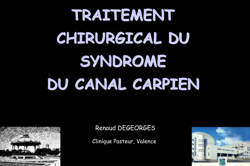 traitement chirurgical du syndrome du canal carpien l.