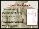 abord thoracotomie