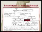pneumothorax arbre d cisionnel