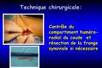 technique chirurgicale22