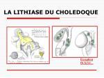 la lithiase du choledoque23