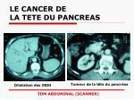 le cancer de la tete du pancreas29