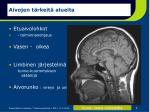 aivojen t rkeit alueita