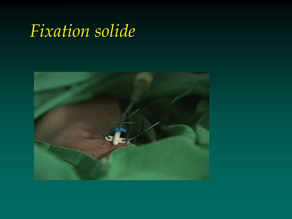 Fixation solide