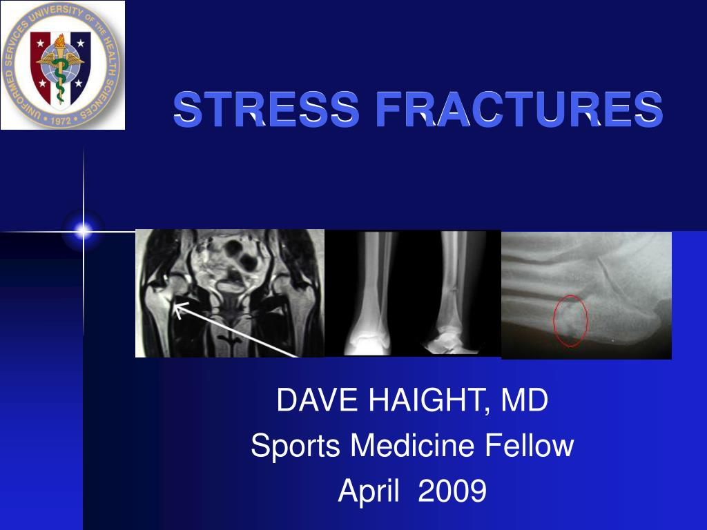 stress fractures l.