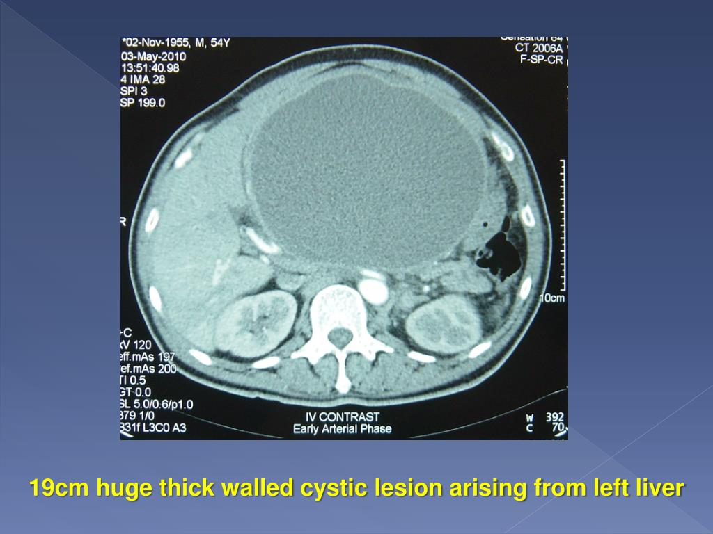 19cm huge thick walled cystic lesion arising from left liver