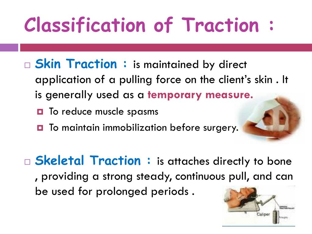 Classification of Traction :