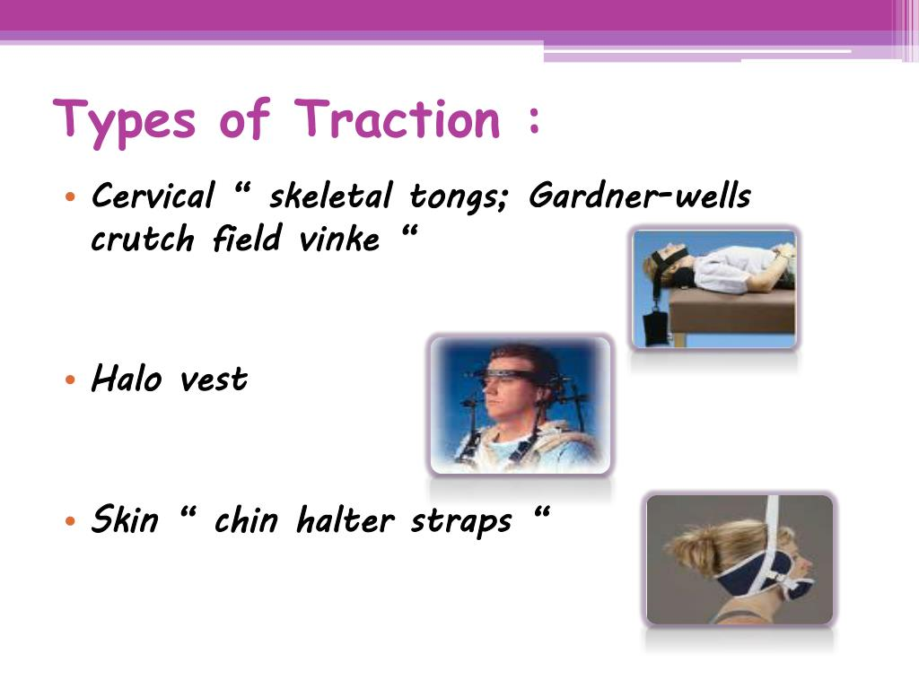 Types of Traction :
