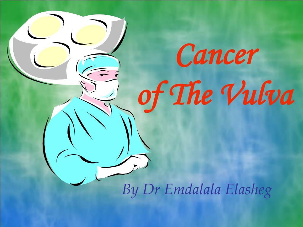 cancer of the vulva l.