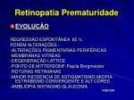 retinopatia prematuridade39