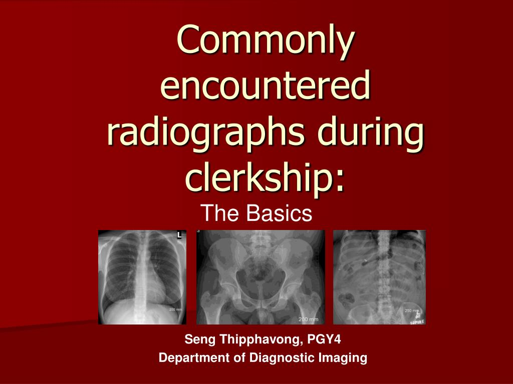 commonly encountered radiographs during clerkship l.