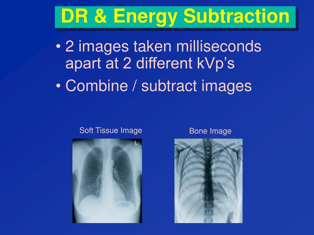 DR & Energy Subtraction