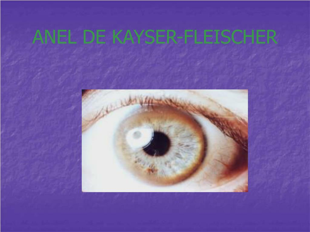 ANEL DE KAYSER-FLEISCHER
