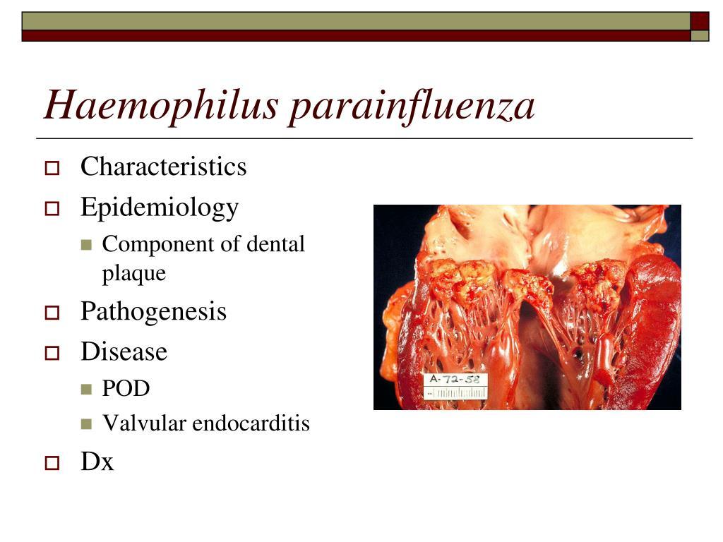Haemophilus parainfluenza